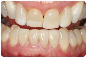 worn-teeth-restored-with-veneers-after