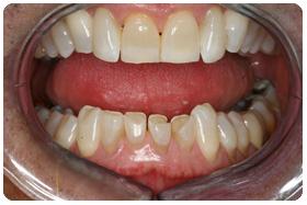 worn-teeth-restored-with-veneers-before